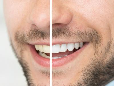 thumbnail of Dental Whitening