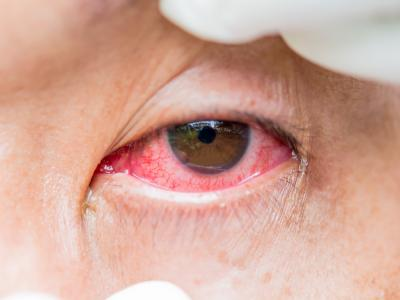 thumbnail of What Causes People to Suffer From Pink Eye?