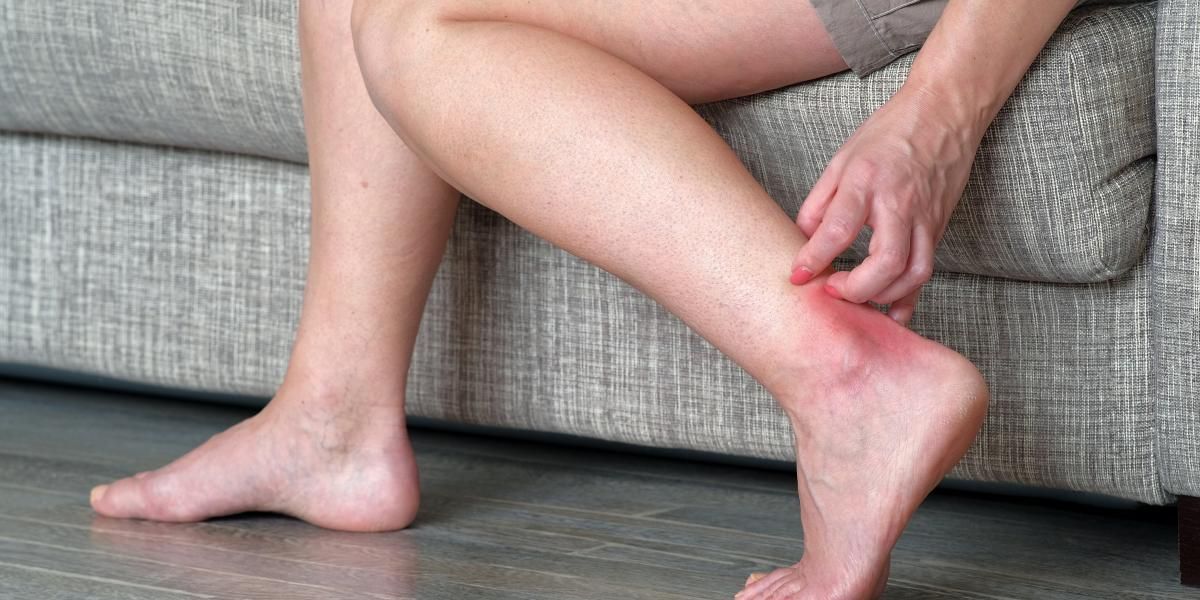 banner of Sudden Intense Itching Might Mean Scabies