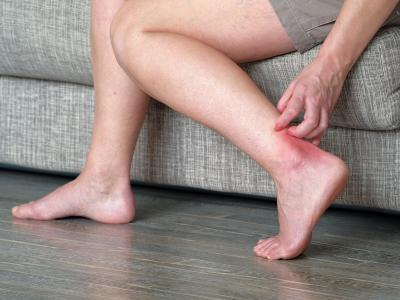 thumbnail of Sudden Intense Itching Might Mean Scabies
